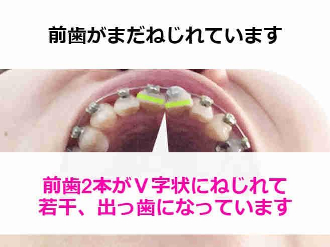 ねじれた前歯を下から見上げた様子