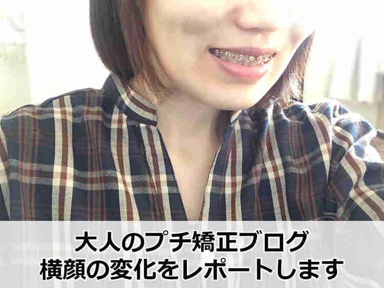 大人のプチ矯正ブログ 横顔の変化レポ