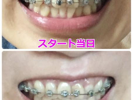 矯正ブログ 上の歯のみの矯正開始から50日経過【体験談】