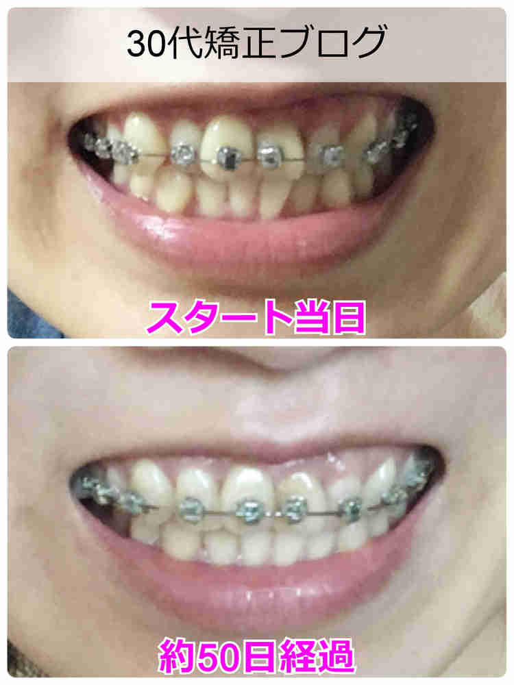 矯正前の歯並びと矯正後の歯並びのビフォーアフター写真