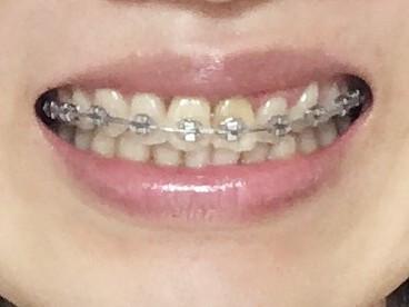 ワイヤー矯正を始めて4か月経過した筆者の歯並び