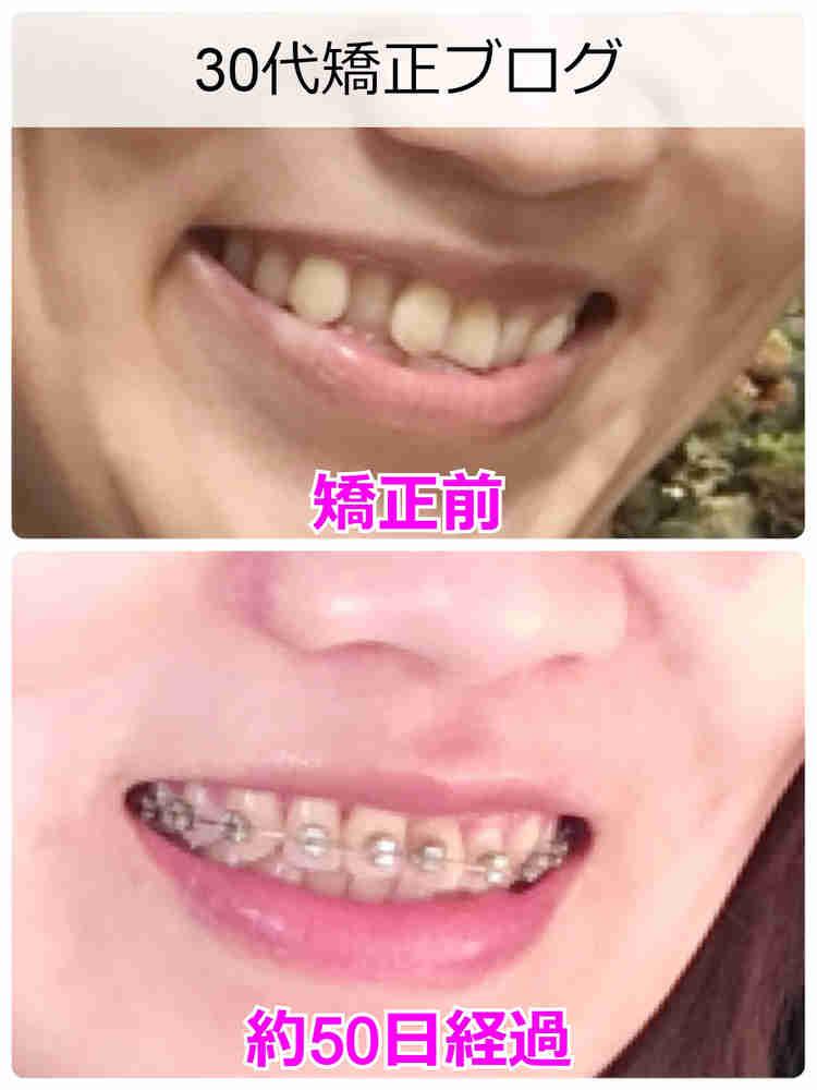 30代女子の歯列矯正 サイドからのビフォーアフター