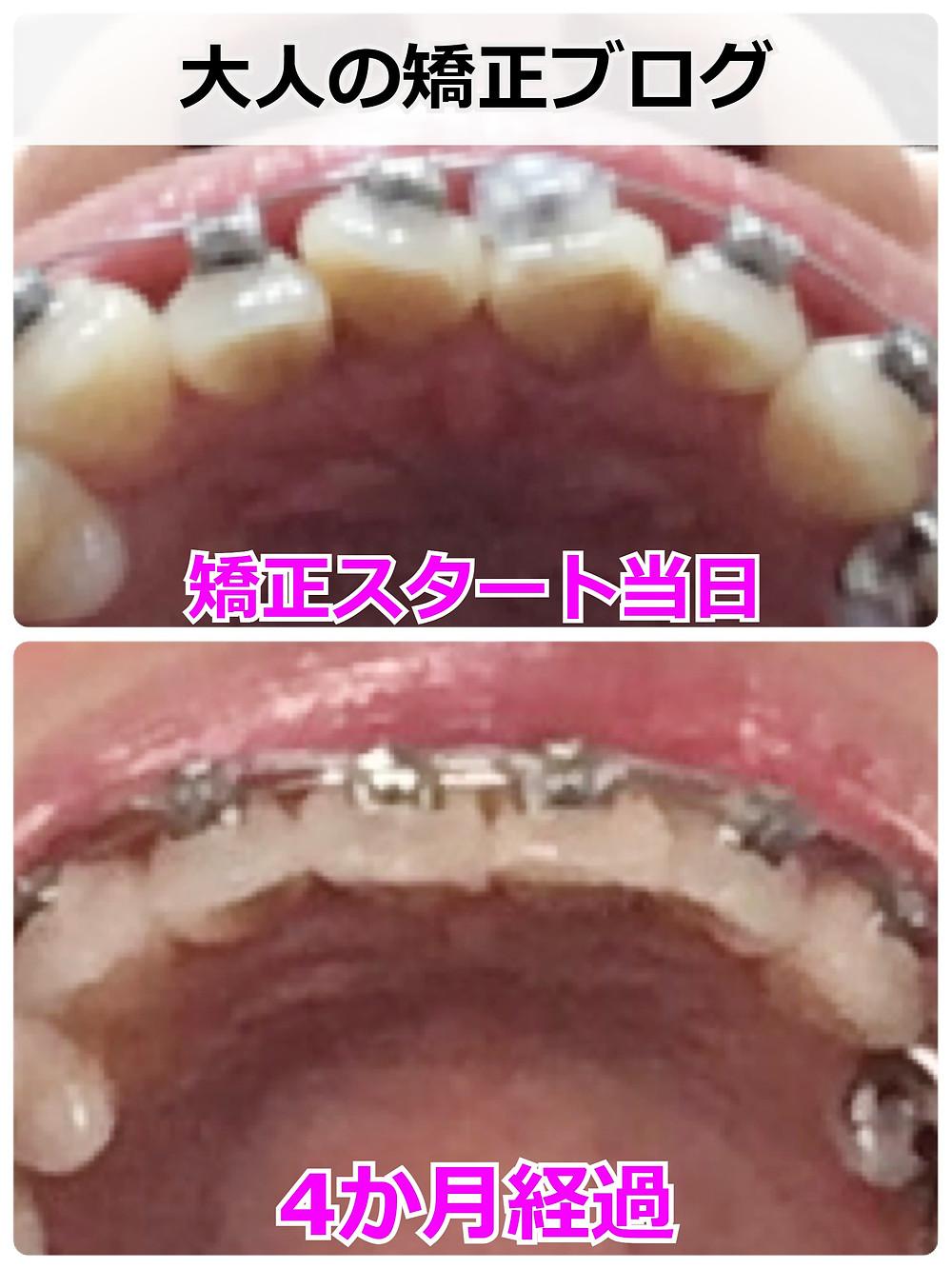 下から見た歯列の変化