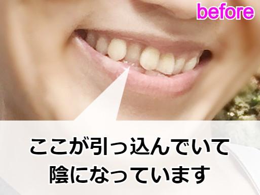 歯並び矯正前の様子【サイドから】