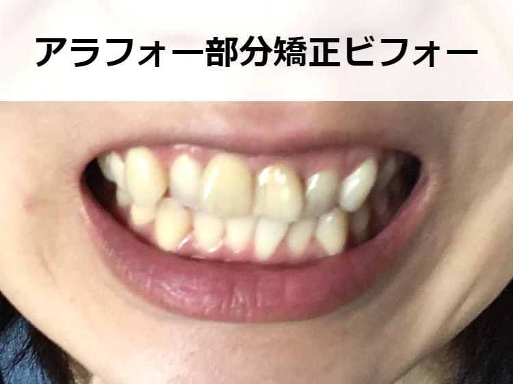 矯正前の歯並び【正面から】