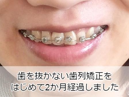 歯を抜かない矯正をして2か月が経過した様子
