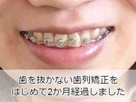 部分矯正スタートから2か月経過した歯並び