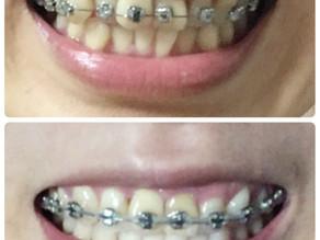 2か月半で前歯の重なりが改善された!【矯正ブログ】