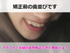 歯並びの悪いアラフォー大人女子が歯列矯正できた理由