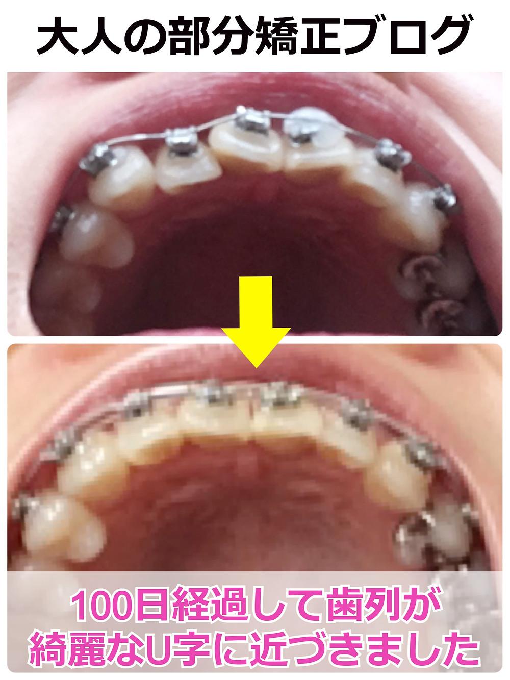 出っ歯の部分矯正ビフォーアフター【下から】