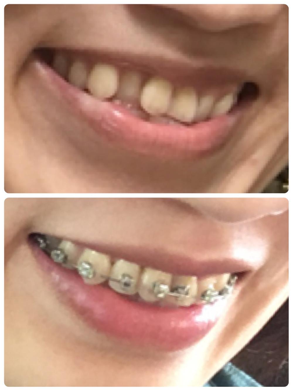 コンプレックスの歯並びを矯正中【サイドからの写真】