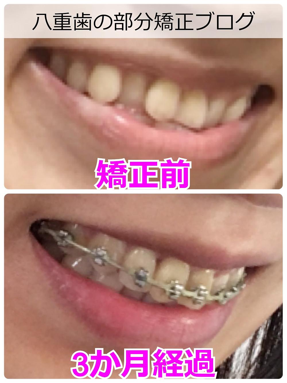 八重歯の部分矯正スタートから3か月・比較画像(横から)