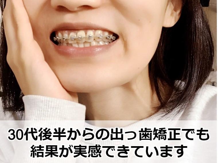 30代後半からの出っ歯矯正で歯並びが改善中