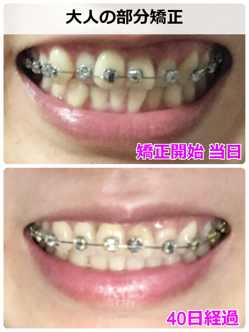 ガタガタの歯並びを矯正しはじめて40日経過