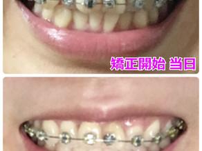 ガタガタの歯並びを矯正しはじめて40日経過【アラフォー】