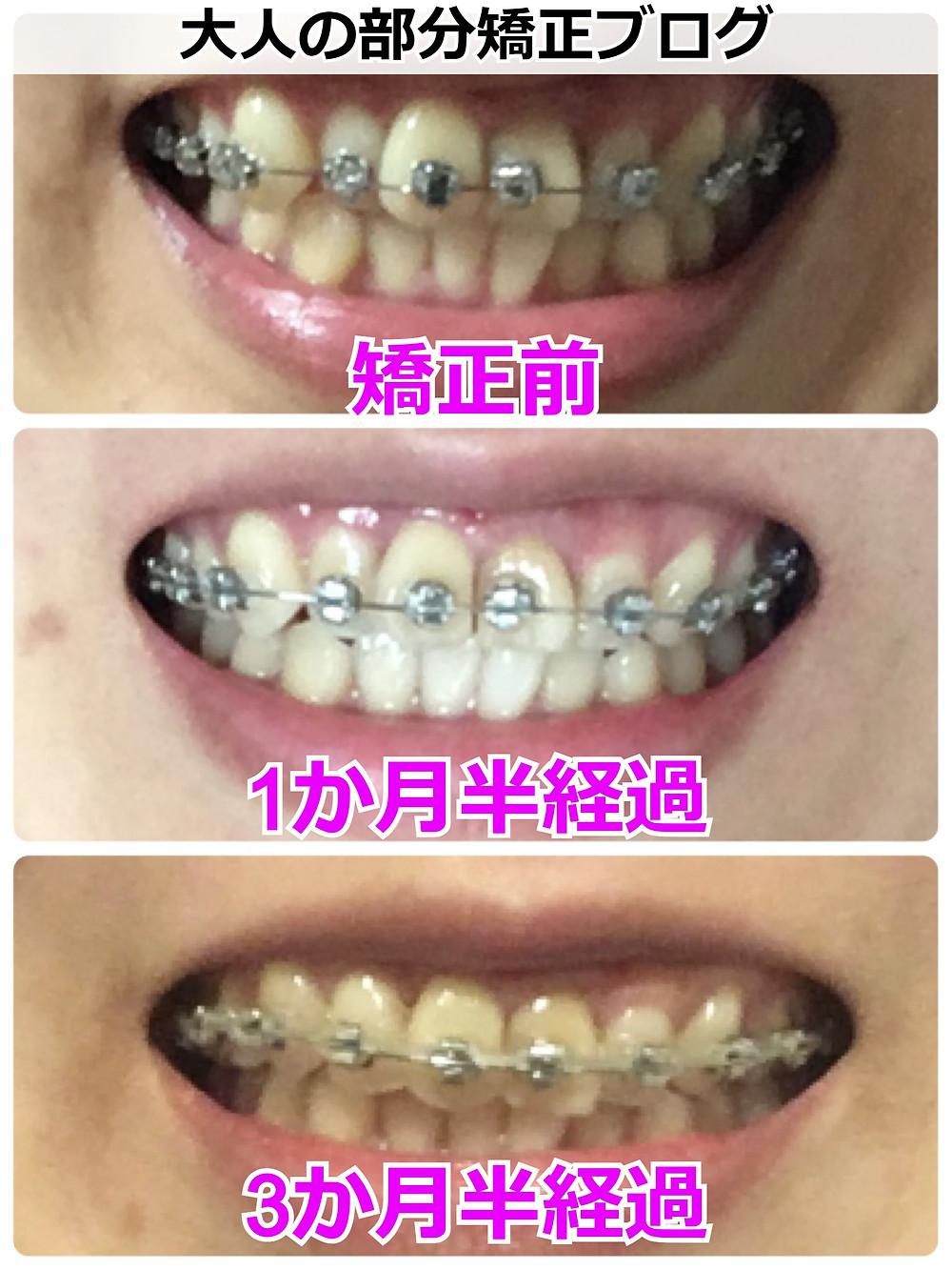 歯を抜かない矯正の経過【正面】