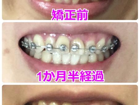 歯を抜かない矯正ブログ【矯正スタートから3か月半経過】