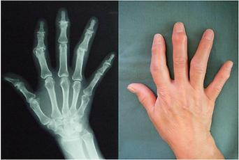 ヘバーデンおよびブシャールの手の写真