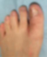 切断指・爪欠損術後(足)