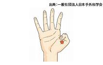 バネ指、腱鞘炎イラスト