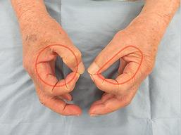 手根管症候群術前