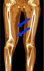 下肢リンパ浮腫術前レントゲン写真