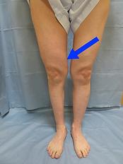 下肢リンパ浮腫術後