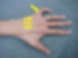 骨間筋の萎縮と  小指のかぎ爪状変形写真