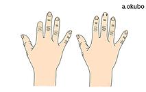 切断指・爪欠損イラスト