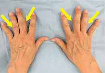 両側中指環指の変形