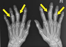 両側中指環指の変形レントゲン写真