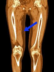 下肢リンパ浮腫術後レントゲン写真