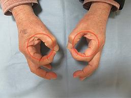 手根管症候群術後