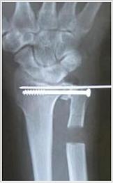 手関節症で行われる形成術