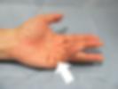 デュプイトラン拘縮病態写真