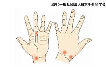 ガングリオン、粘液嚢腫イラスト