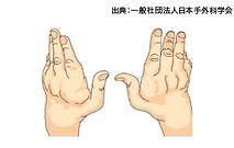 関節リウマチによる手関節、手指変形イラスト