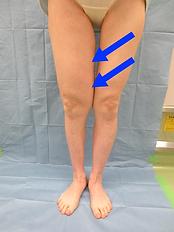 下肢リンパ浮腫術前