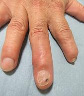 切断指・爪欠損術後(手)
