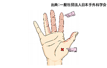 手根管症候群イラスト
