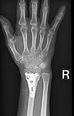 橈骨遠位端骨折術後レントゲン写真