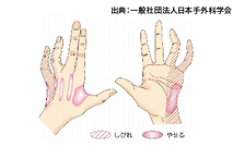 肘部管症候群イラスト