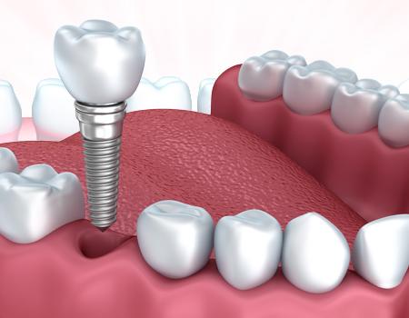 Prótese e Implantes