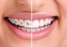 Ortodontia é uma especialidade da odontologia que atua no diagnóstico, tratamento e prevenção das...