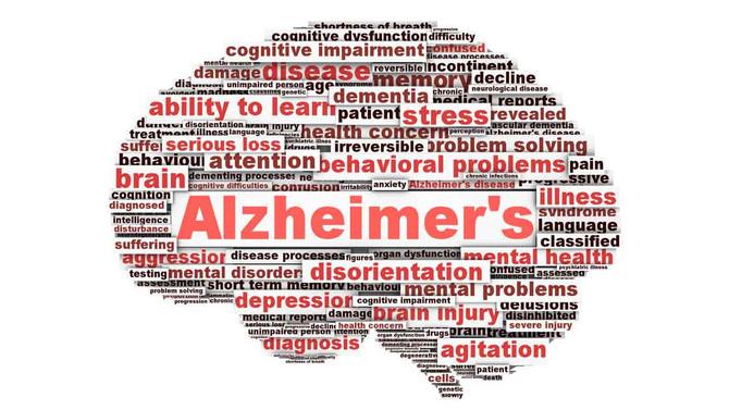 Huile de noix de coco, prévention Alzheimer??