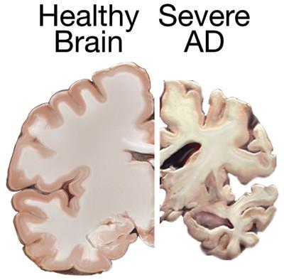Au sujet de la maladie d'Alzheimer…