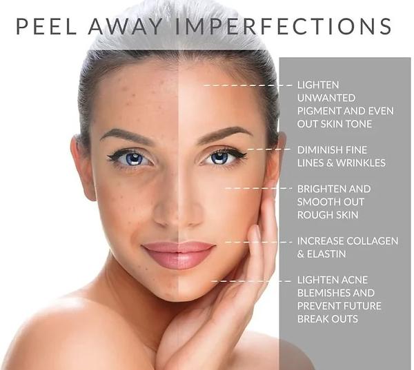 Chempeel peel away imperfections.webp