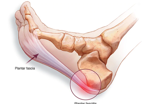 A Pain in the Foot