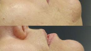 3Juve - The Ultimate Skin Laser and Rejuvenation Machine