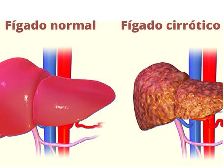 Gordura no Fígado - Como tratar de forma natural mudando hábitos.